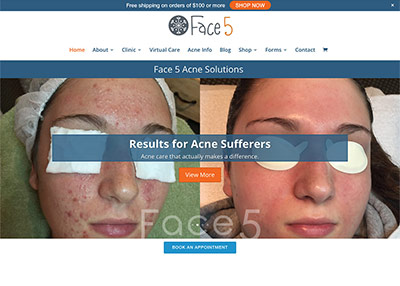 Face Five Acne Solutions